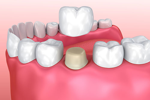 Affinity Dental Crown