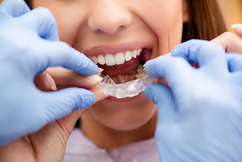 Invisalign treatment affinity dental